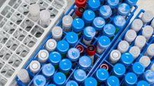美單日新增逾5.5萬人染疫創紀錄 川普讚篩檢成效