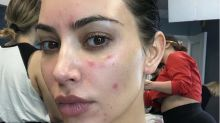 Kim Kardashian details her 'painful and scary' struggles with psoriasis