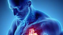 """Uno studio del Gemelli scopre il """"dietro le quinte"""" dell'infarto"""
