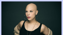 'Be More Chill' star Lauren Marcus on her alopecia diagnosis: 'I'm trying to find the best in it'