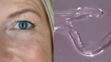 What The Health?! Woman removes four live worms from her eye after jogging