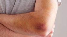 Moratones y hematomas, si te salen a menudo podría ser hemofilia