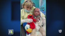 Lluvia de donaciones para ayudar a niño que sufrió quemaduras en el 95% de su cuerpo