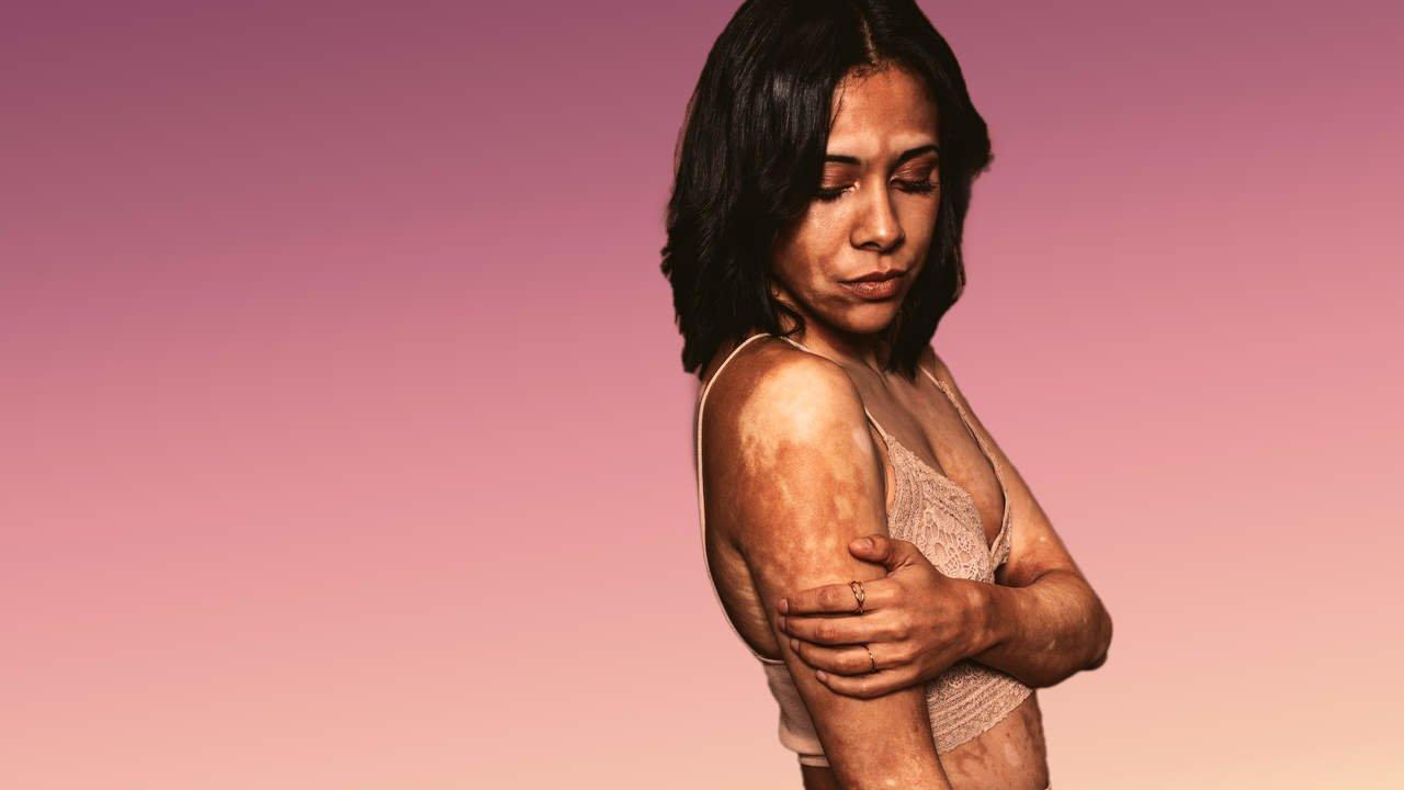 What Is Vitiligo And Why Does It Cause White Patches Of Skin
