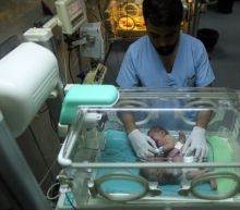 Travel plea for conjoined twins in blockaded Gaza