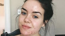 7 Women Get Real About Living With Acne