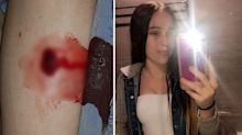 Teen suffers shocking injuries after 'bike is thrown at her'