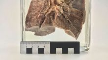 Lo que un pulmón de 100 años nos puede contar del sarampión