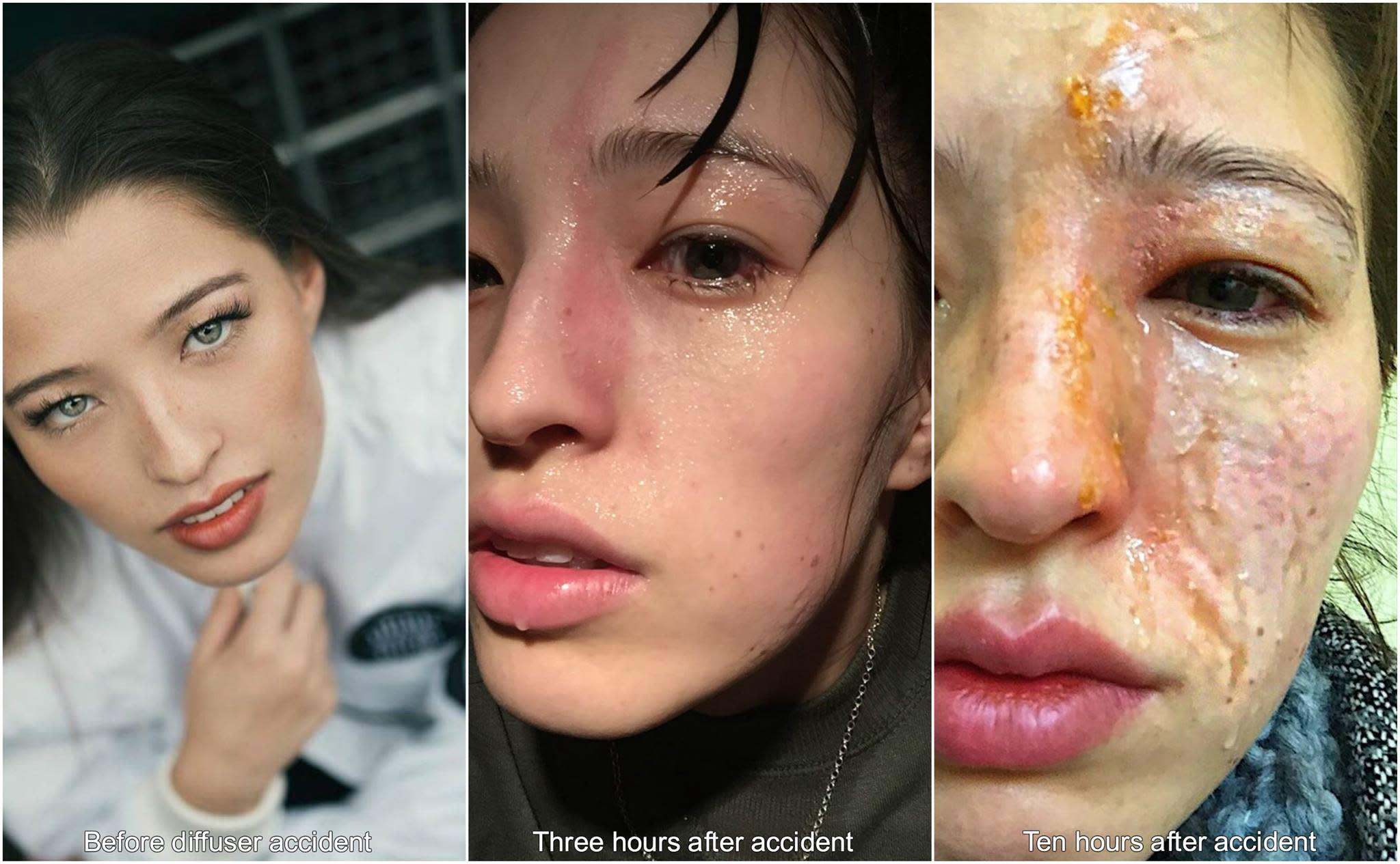 image burns facial after and Before