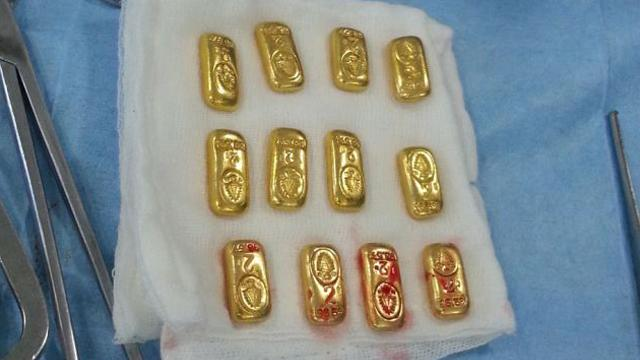 Surgeons Find 12 Gold Bars In Man's Stomach