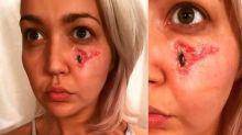 Meghan Linsey con el rostro destrozado por una araña