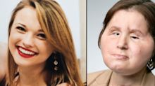 ​This 21-Year-Old Is the Youngest Person in the U.S. to Get a Face Transplant​