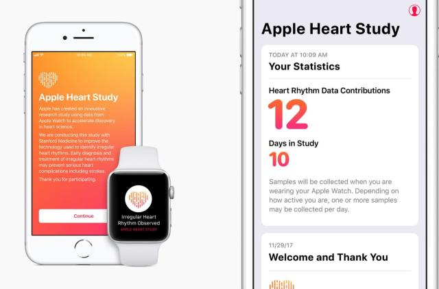 Stanford begins irregular heartbeat research using Apple Watch data