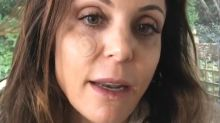 Bethenny Frankel Documents Her Skin Cancer Removal: '12 Stitches and I'll Be Back Like New'