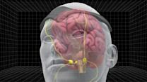 FDA approves first migraine prevention device