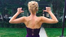 Beauty Queen Exposes Surgery Scars to Bring Visibility to Her Disease