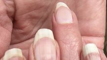 Are 'covid nails' a sign you had the virus? Experts weigh in.