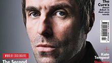 Liam Gallagher sometido a un doloroso tratamiento por artritis