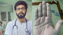 'Can't Take Off Gloves For Over 10 Hours': What Happens to a Doctor's Hands in a Covid-19 Ward