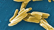 'Severe gaps' in identifying drug resistance puts TB patients at risk, report claims