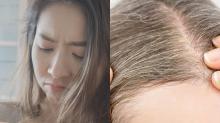 【醫生專欄】白頭髮成因逐個捉