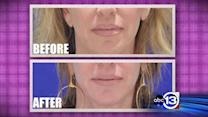 New facial filler targets tiny wrinkles