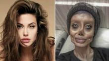 Desastre… así quedó tras 50 cirugías para lucir como Angelina Jolie