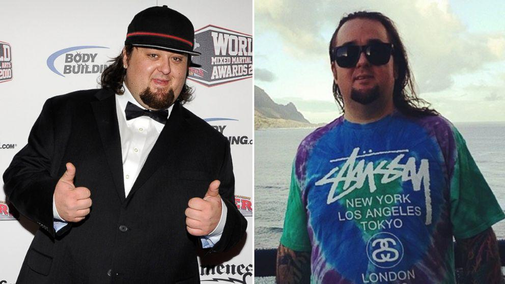 'Pawn Stars' Funnyman Chumlee Sheds 75 Pounds