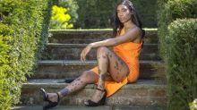 Diventa modella con una rara malformazione cutanea: sconfitti i bulli