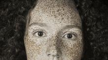 Ces photos prises à l'aide d'une lumière ultraviolette révèlent l'impact du soleil sur la peau