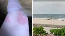 'Like 10,000 razor blades': Woman stung by jellyfish at popular beach