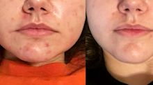 This Woman Got Rid of Her Acne in 3 Weeks with a Bottle of Oil