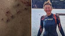 Woman's shocking injuries after NSW shark attack