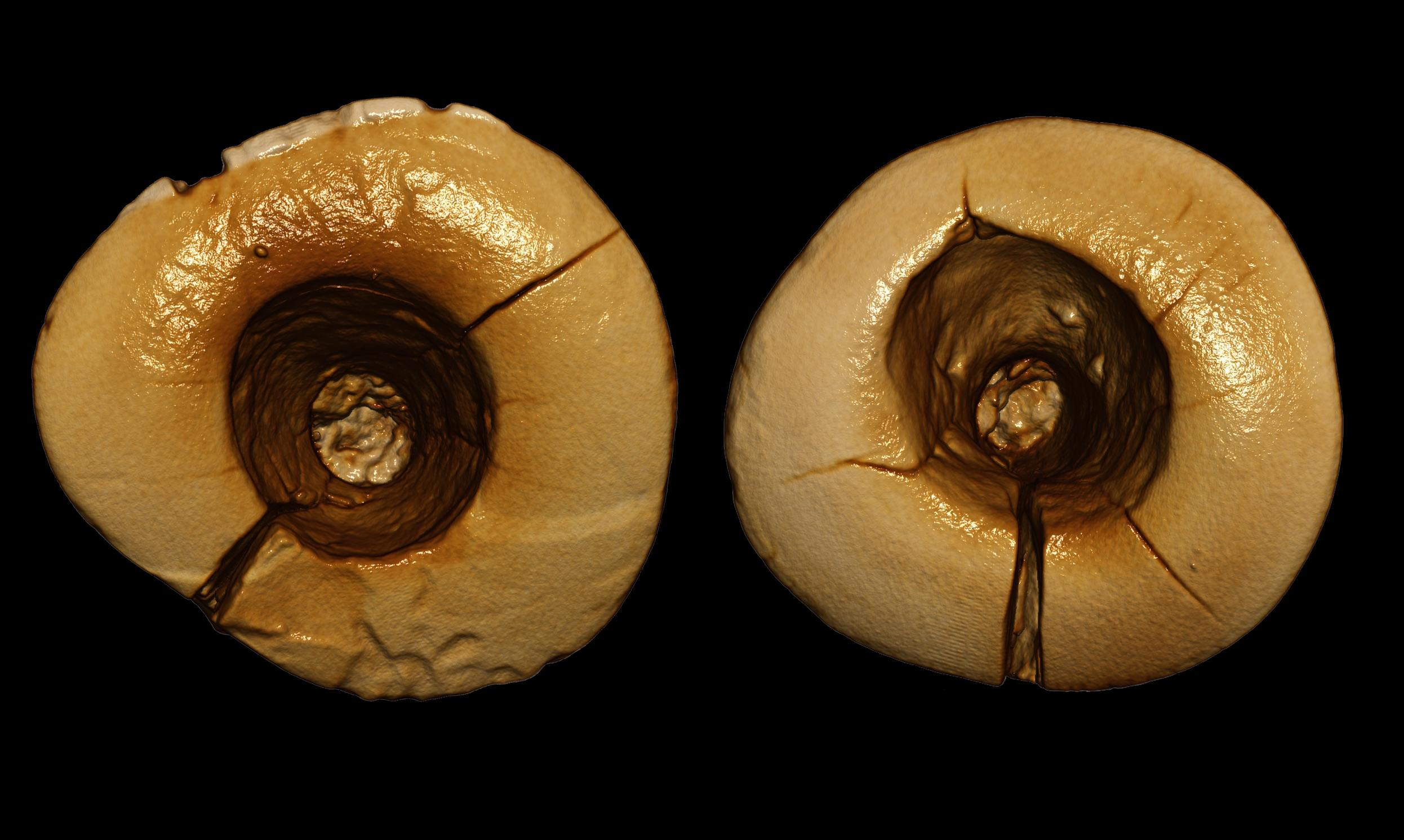 Earliest Dental Fillings Discovered in 13,000-Year-Old Skeleton