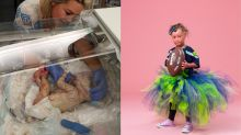 Girl whose skin grows 10 times faster than normal has become a model