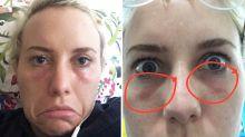 A makeup artist burnt my eyes