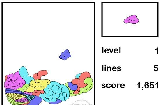 Tetris players found to have greater brain efficiency, thicker cortex and better hair