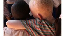 Meet the People Bringing Albinism Out of Shadows