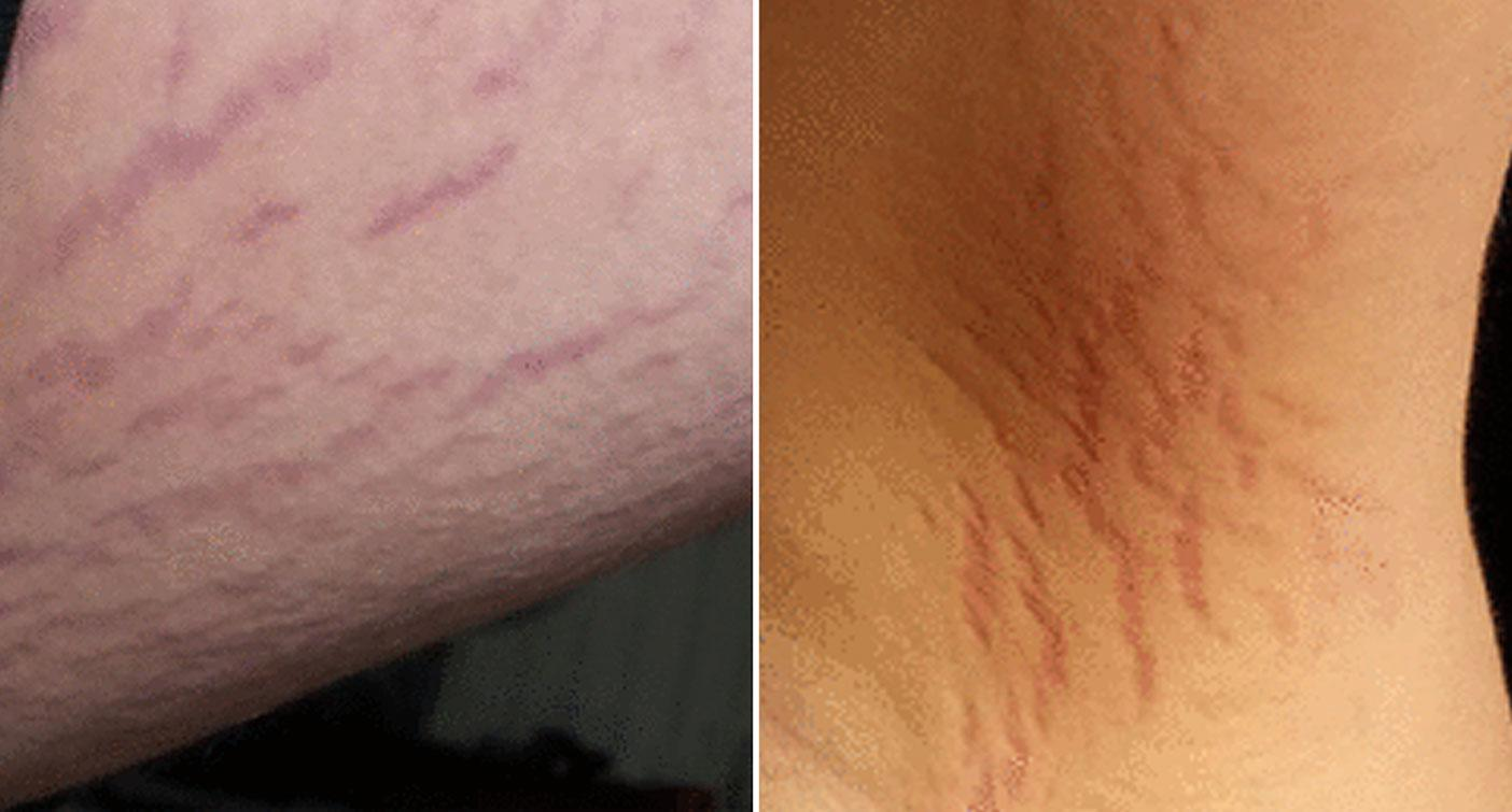 Boy turns psychotic saying he's son of devil after 'cat scratch' infection