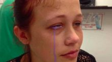 A model who had a purple tattoo on her eyeball now risks losing her sight