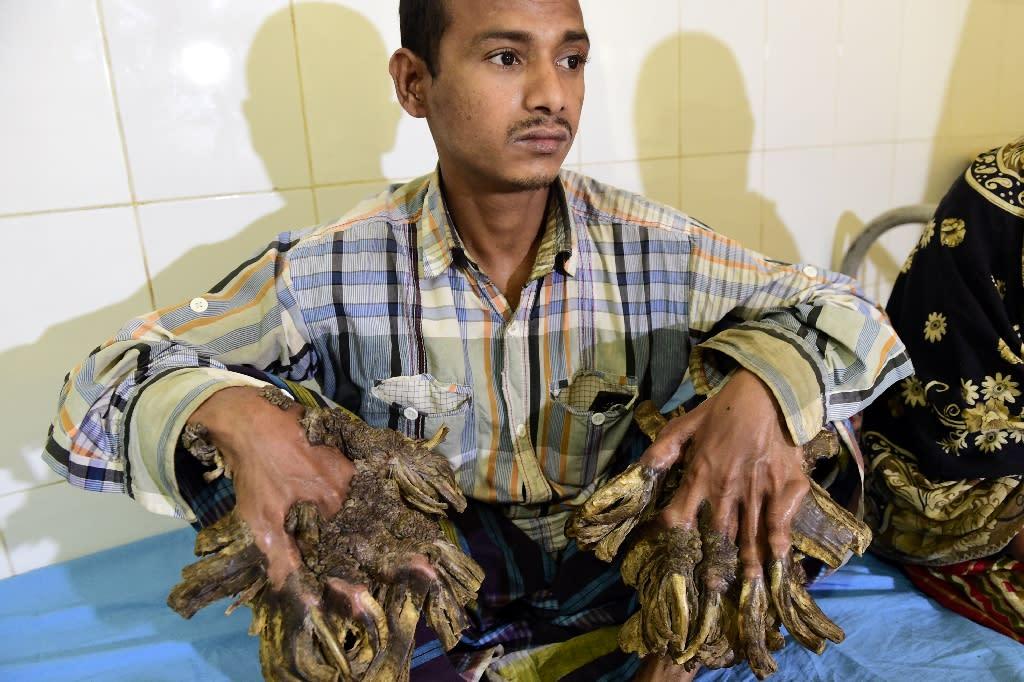 "Bangladeshi Abul Bajandar, 26, became known as ""Tree Man"" for the massive bark-like warts on his hands and feet (AFP Photo/Munir Uz Zaman )"