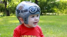 Baby diagnosed with plagiocephaly gets cool 'Back to the Future'-themed helmet