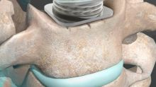 Orthofix M6-C Artificial Cervical Disc IDE Study Three- and Four-Year Data to be Presented at ISASS