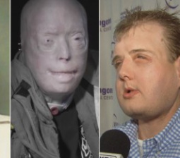 Fireman Speaks Out 1 Year After Face Transplant: 'No More Frightened Children Running Away From Me'