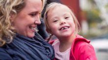 Os cuidados com os dentes com portadores da Síndrome de Down