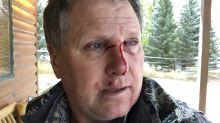 Cazador se lesiona al protegerse de ataque de osa grizzly