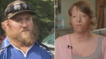 Man Who Accidentally Burned His Wife Leaves Her, Says He Has Nothing to Apologize For