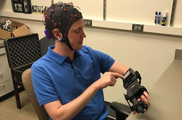Mind-controlled bionic hand can help stroke patients move again