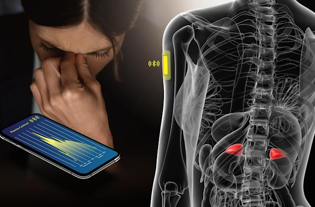 EPFL engineers create a chip that detects stress levels via sweat