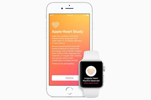 Stanford study finds Apple Watch can detect irregular heart rhythms